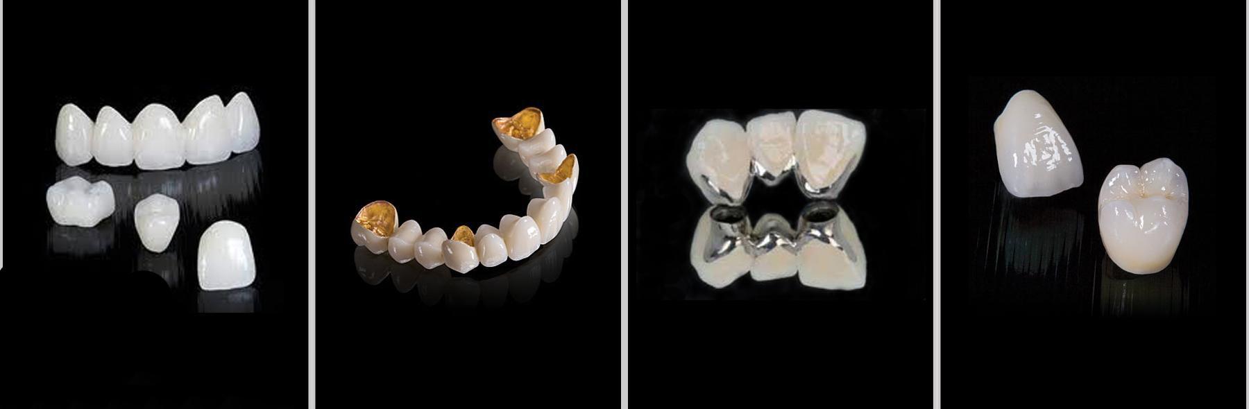 Cách chọn răng sứ loại nào tốt nhất HOÀN HẢO nhất